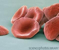 Glóbulos rojos vistos en #microscopio SEM con 7500 aumentos a 10 cm y coloreados