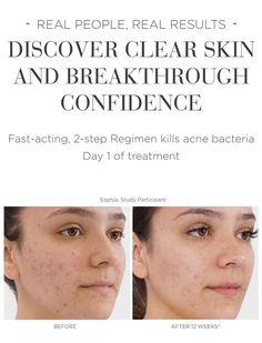 Home Remedies For Acne, Acne Remedies, Teenage Acne, Rodan And Fields, Real People, Clear Skin, Acting, Smoke