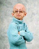 progeria images - Bing