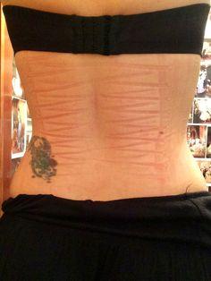 3dfafa4aea skin impressions from clothes bra corset - Google Search