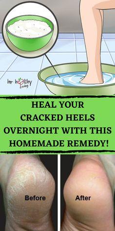 cracked heels + painful cracked heels + painful cracked heels remedies + painful cracked heels remedies home + painful cracked heels coconut oil + painful cracked heels foot soaks + cracked heels woman + how to fix cracked heels + how to fix cracked heels Cracked Heals Remedy, Cracked Feet Remedies, Dry Heel Remedies, Heal Cracked Heels, Cracked Skin, Cracked Heel Relief, Herbal Remedies, Health Remedies, Tips
