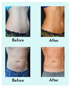 Best weight loss south africa