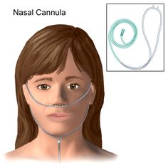 How to insert Nasal Cannula Medical Pictures