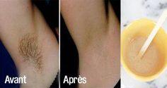 Une astuce puissante pour vous débarrasser des poils sous les aisselles !