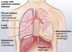 Asbestosis Causing Danger Zones At home And At Work Mesothelioma And Asbestosis Invades Your Lungs