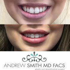 Lip Filler by: Dr. Andrew Smith #drandrewsmith #andrewsmithmd #plasticsurgery #boardcertifiedplasticsurgeon #orangecounty #socal #cali #beauty #cosmeticsurgery #body #surgery #lipfillers #juvederm #pout #lips
