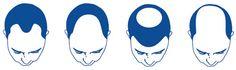 Esistono diverse forme di perdita di capelli: nell'uomo, la forma più frequente è l'alopecia androgenetica, che colpisce l'80% degli individui di sesso maschile entro i 60 anni di età. In questo caso a giocare un ruolo determinante nel processo che porta all'alopecia androgenetica vi sono gli ormoni maschili, i cosiddetti androgeni.    Leggi di più su: http://www.it.euroclinix.net/perdita-capelli.html