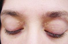 Do you have yellowish pimples around your eyes, especially near the upper eyelids of the inner corners of your peepers? That's a condition known in the medical field as xanthelasma. The bumps may appear like they're filled with pus or any other yellow-colored gunk, but actually those are deposits of cholesterol. Xanthelasma is not something …