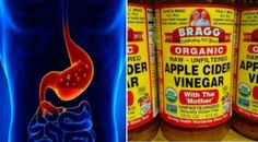 1 TBSP of Apple Cider Vinegar For 60 Days Can Eliminate These Health Problems