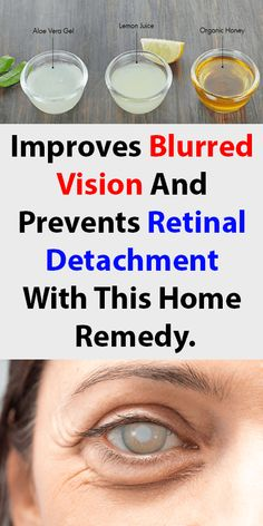 Improves blurred vision and prevents retinal detachment with this home remedy Natural Remedies For Arthritis, Natural Home Remedies, Natural Medicine, Herbal Medicine, Marfan Syndrome, Health Site, Vision Eye, Diabetes Remedies, Homeopathic Remedies