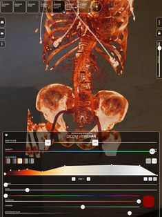Medical Virtual Reality apps: DICOM Viewer XR, Dissection Master XR and Anatomy Master XR. For Surgery Planning, Medical Teaching and Patient Information. For AR, VR and Mobile. Virtual Reality Apps, Augmented Reality Apps, Augmented Reality Applications, Medical Imaging, Radiology, Make It Simple, Ios, Health Care, Medicine
