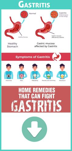 11 Home Remedies to Cure and Eliminate Gastritis Naturally Foods For Gastritis, Home Remedies For Gastritis, Gastritis Symptoms, Natural Health Remedies, Medical Laboratory Science, Reflux Diet, Gut Health, How To Stay Healthy, Tips