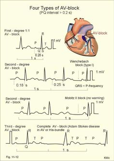 Ekg gold for nursing students