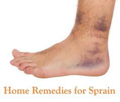 Top 9 Home Remedies for Sprain..