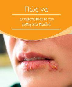 Πώς να αντιμετωπίσετε τον έρπη στα παιδιά  Ο έρπης δεν έχει θεραπεία μέχρι και σήμερα και είναι σχετικά σπάνιος στα παιδιά. Ωστόσο, σ' αυτό το άρθρο, θα σας πούμε πώς να τον αντιμετωπίσετε και να αποτρέψετε την εξάπλωση του ιού στα παιδιά.