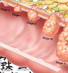 Colon Cancer Stages - Health, Medicine and Anatomy Reference Pictures