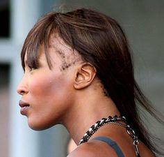 L'alopécie de traction est une maladie liée au tressage, au tissage et aux extensions qui peut causer une perte de cheveux permanente, lorsqu'on se tisse pendant des années ou si le tissage est trop serré! Ou lace wig à repetitions.