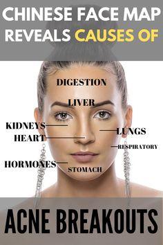 Face Mapping body Face Mapping boys Face Mapping break outs - Acne Treatment Body Acne, Acne Face, Doterra Acne, Chinese Face Map, Face Mapping, Acne Causes, Acne Breakout, Hormonal Acne, Body Organs