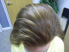 Your Crowing Glory: Beautiful And Healthy Hair Tips - Hair Care Tips Hair Growth Shampoo, How To Get Thick, Healthy Hair Tips, Hair Loss Women, Hair Loss Remedies, Prevent Hair Loss, Hair Loss Treatment, Damaged Hair, About Hair