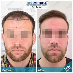 Before and after DHI Sapphire + FUE Hair Transplantation by Dr. Acar at the Cosmedica Clinic in Istanbul, Turkey