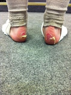 Welcome to point shoes. This happens when you practice in ballet shoes for several hours.