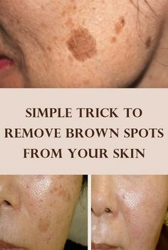 Simple Tips and Trick to Remove Brown Spots and Clear Your Skin