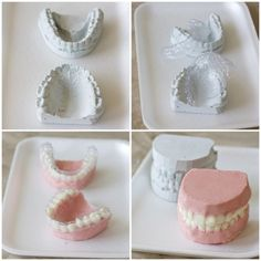 Edible dentures: chocolate is the new golden stone | Mouthing Off | Blog of the American Student Dental Association