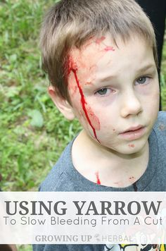 This is a story of how I used yarrow to slow bleeding from a cut on one of my children. Yarrow is a styptic herb, and a must-have for herbal first aid. Holistic Remedies, Homeopathic Remedies, Natural Health Remedies, Natural Cures, Natural Healing, Holistic Medicine, Herbal Medicine, Natural Medicine, Holistic Care