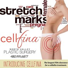 North Valley Plastic Surgery is proud to offer Cellfina! The Cellfina™ System is the only FDA-cleared minimally invasive procedure clinically proven to improve the appearance of cellulite for two years. Check out some before & after pictures & testimonials on our website. #PlasticSurgery #Cellfina #Scottsdale #SkinCare #Skin #Aesthetics #NVPSAZ #NVPS