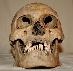 Skull Stock Photo 03 by Aleuranthropy.deviantart.com on @deviantART