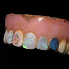 Opal dentures