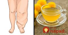 Water retention a disease caused when excessive fluids accumulate inside human body. Today we present foods and drinks that help get rid of water retention. Inside Human Body, Water Retention Remedies, Edema, Natural Diuretic, Cute Animal Memes, Reduce Body Fat, Natural Health Remedies, Green Life, Medical Conditions