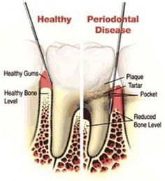 Advanced Periodontal Disease: where many teeth are loose and there is insufficient bone support for these teeth.