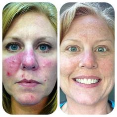 Unbelievable results on rosacea with Rodan and Fields Soothe regimen!! This is amazing!!! #RodanandFields www.sspear.myrandf.com