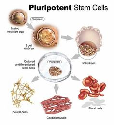 Stem cell therapy is available today in leading facilities around the world. It is part of natural medicine. The controversy and confusion over adult stem cell therapy's safety and effectiveness is unwarranted. In Vivo, Cell Biology, Ap Biology, What Is Stem, Huntington Disease, Cord Blood Banking, Stem Cell Research, Gene Therapy, Stem Cell Therapy