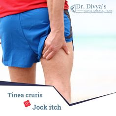 Jock itch is a fungal infection which affects the groin area causing red, itchy, ring-shaped rashes. It spreads through direct contact or through contaminated clothing. #JockItch #FungalInfections