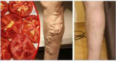 I Had my Legs Full of Varicose veins and a Doctor told me That he Would Use the Tomato in This way to Make that go Away