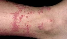 How to Get Rid of Poison Ivy Rashes Fast?