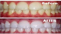 Voici comment avoir des dents blanches naturellement à la maison en seulement 3 minutes ( utile à 100 % )