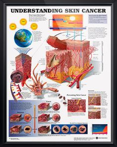 Laminated Skin Cancer anatomy poster defines skin cancer and provides detailed illustrations of how it develops from sun exposure. Dermatology chart for doctors and nurses.