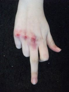 fuck these wounds Mythos Academy, Lizzie Hearts, Jace Lightwood, Grunge Tumblr, Life Is Strange, Mo S, It Hurts, Blood, Finger