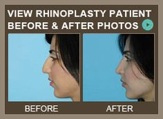 It is a well-known and accepted fact amongst plastic surgeons that rhinoplasty i. - Care - Skin care , beauty ideas and skin care tips Plastic Surgery Video, Plastic Surgery Facts, Rhinoplasty Surgery, Nose Surgery, Board Certified Plastic Surgeons, Before After Photo, I Care, Skin Care Tips, About Me Blog