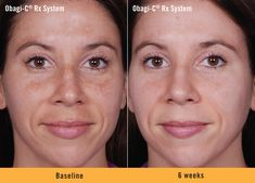 See how the Obagi-C Rx System improved the appearance of hyperpigmentation (brown spots) and restored balance and clarity to lackluster skin in just 6 weeks. Photos have not been retouched.