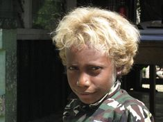 Genetics of blond hair in Solomon Islanders