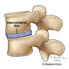 Illustration, sideview of two intervertebral discs