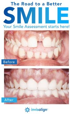 There's nothing like the confidence of a great smile. Whether your teeth are widely gapped, overly crowded, or somewhere in between, Invisalign® clear aligners can be an affordable teeth straightening option for you. Take the free Smile Assessment now to find out if Invisalign treatment is right for you or someone in your family.