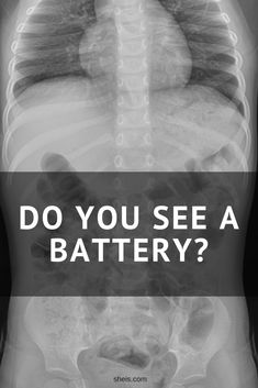 """""""I swallowed a battery."""" That's what my 2-year old told me after saying his tummy hurt. Imagine, if you will, nursing your newborn and watching your toddler play with his hot wheels, and then BOOM – in comes talk of batteries and tummies. His Nana and Aunt Sarah had just left our house, so I …"""