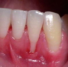 Gingival recession. What is your diagnosis? Would you treat this? If yes, why and how?