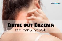 Eczema is a pore and skin situation that causes itchy, crimson, and swollen patches of pores and skin.