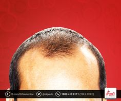 Do you want an effective and permanent solution for your hair loss problems? Then, opt for high quality hair transplantation treatment offered by Dr Paul's Multispecialty Clinic. Book an appointment now by calling 1800 419 8111 toll free.